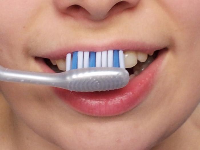 Hampaiden harjaus, yläetuhampaat