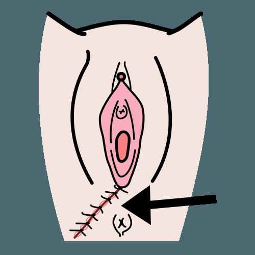 emätin ranskalaiset naiset etsii seksiä lahti